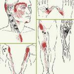 Triggerpoints-therapie en uitstralingsgebied mvmassage